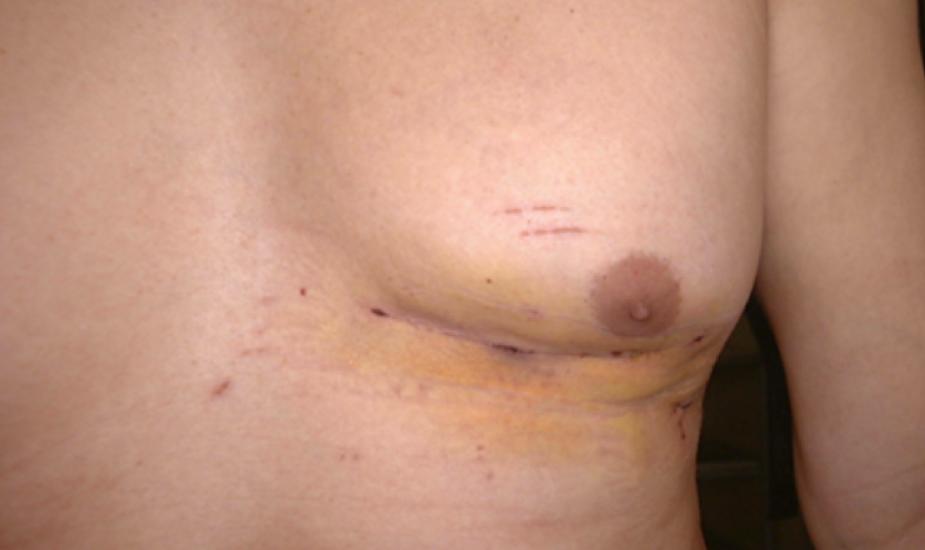 9 cm Anterior Thoracotomy Ventricular Septal Rupture Repair