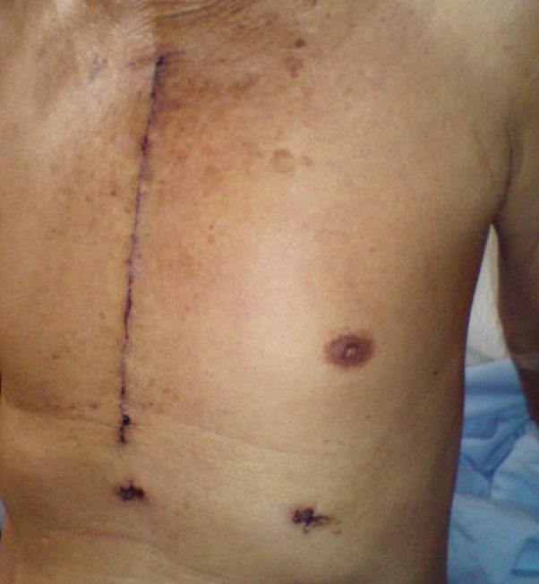 Undergo a full sternotomy